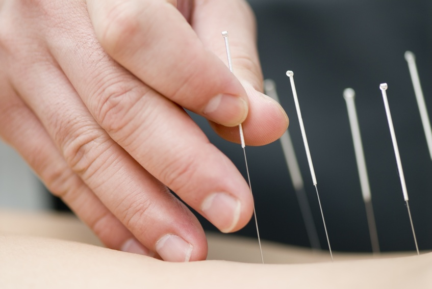4843944 - Treatment by acupuncture © Max Tactic